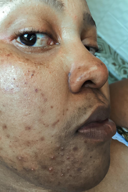 Skin Care Update